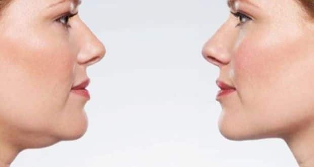 Lose the face fat : tips for losing Weight from cheeks, neck and double chin