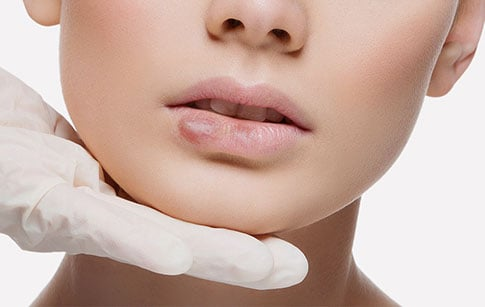 How to Find a Quality Clinic for Dermal Filler Injection